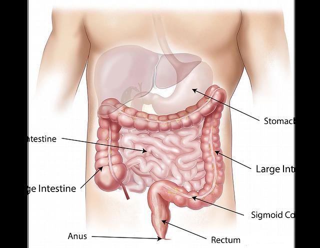 Un nanosistema per contrastare il tumore al colon